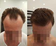 Investor Partner gesucht secret hair