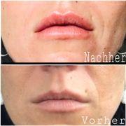 Lippen und Faltenunterspritzung